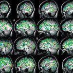 Мозг и секс. Оргазм активизирует измененное состояние сознания